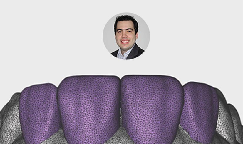 Meshmixer Dental - Ultimate - Online